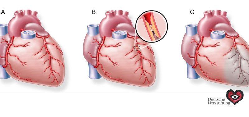 Neuer Schnelltest für Herzinfarkt-Diagnose