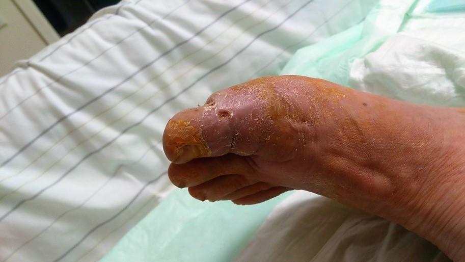 Diabetischer Fuß – Zweitmeinung vor Amputation